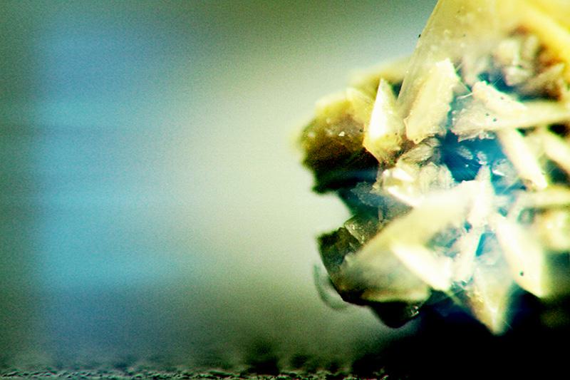 Kidney Stone 05